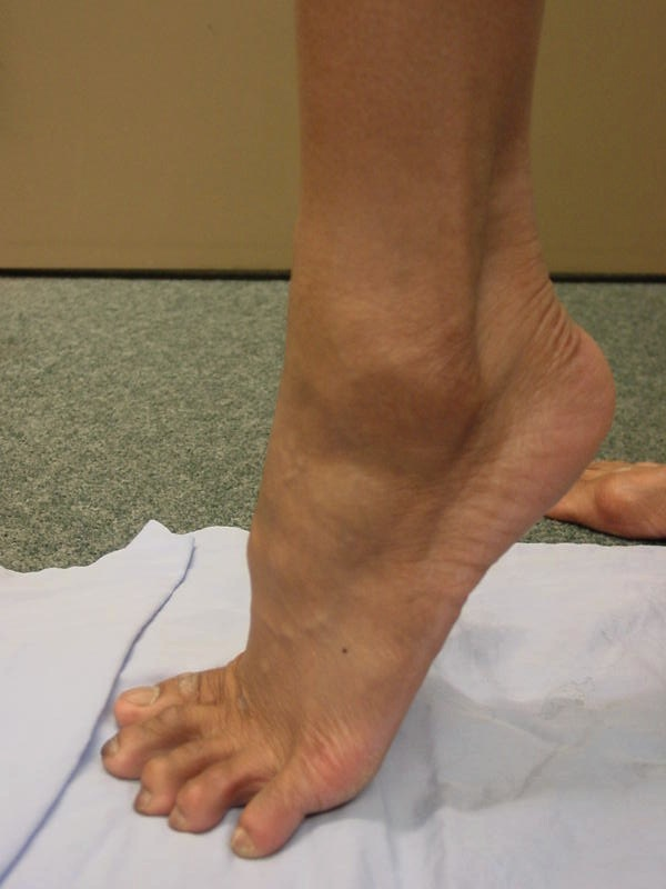 Peroneal Dislocation 2
