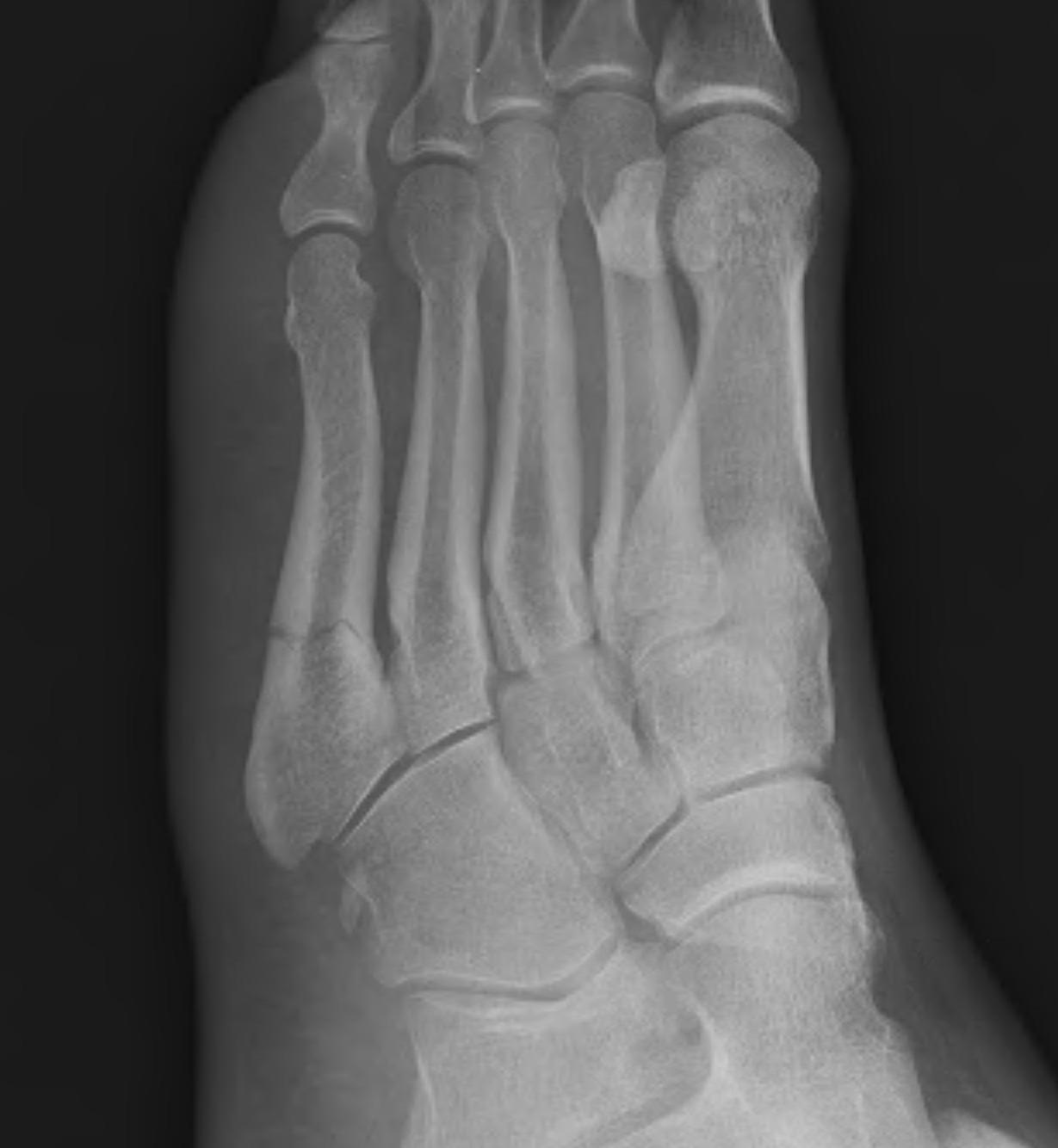 Base of 5th Metatarsal Fracture Zone 2