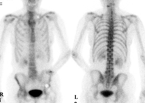 Bone Scan Normal Adult