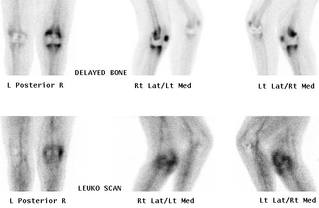 Bone scan and Leucocyte Scan Infected TKR