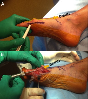 Approach to Hallux Valgus