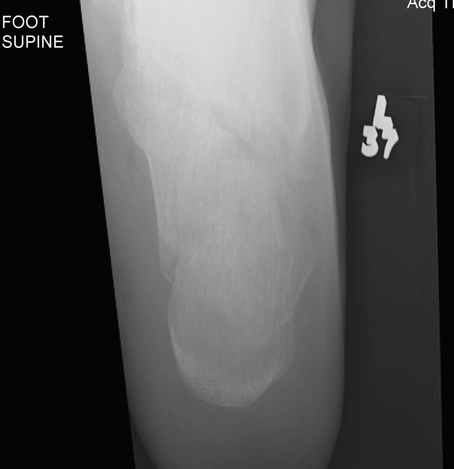 Calcaneal Fracture Harris Axial View