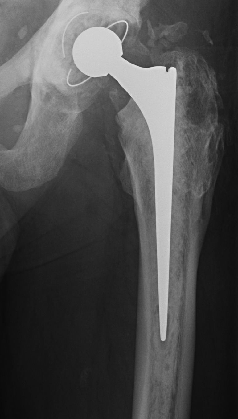 Cemented Femur Possible Loose