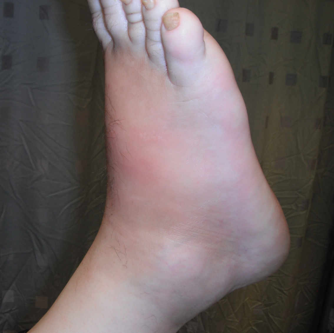 Charcot Foot Elevated