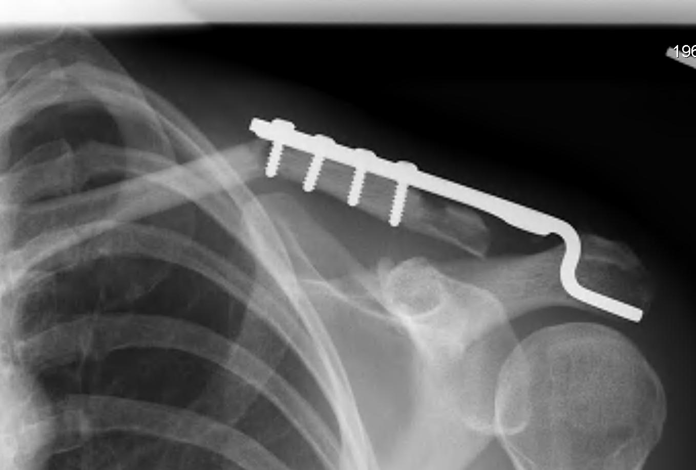Clavicle Hook Plate Fracture