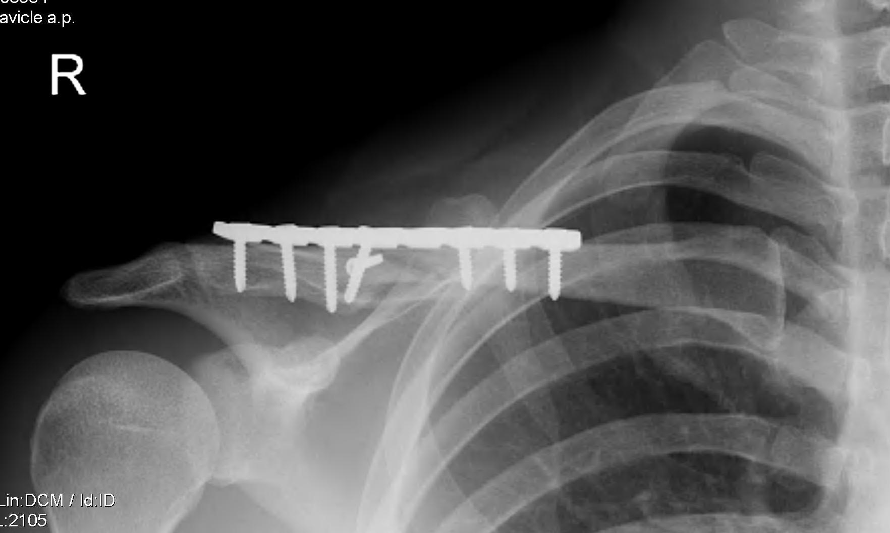 Clavicle Plate