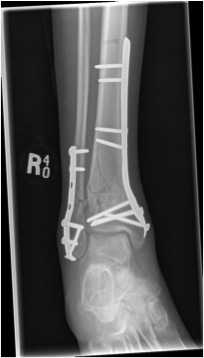 Distal Tibial Fracture ORIF