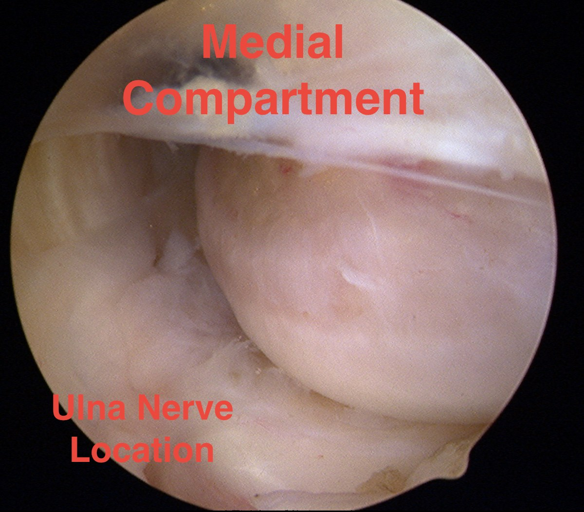 Elbow Arthroscopy Medial Compartment