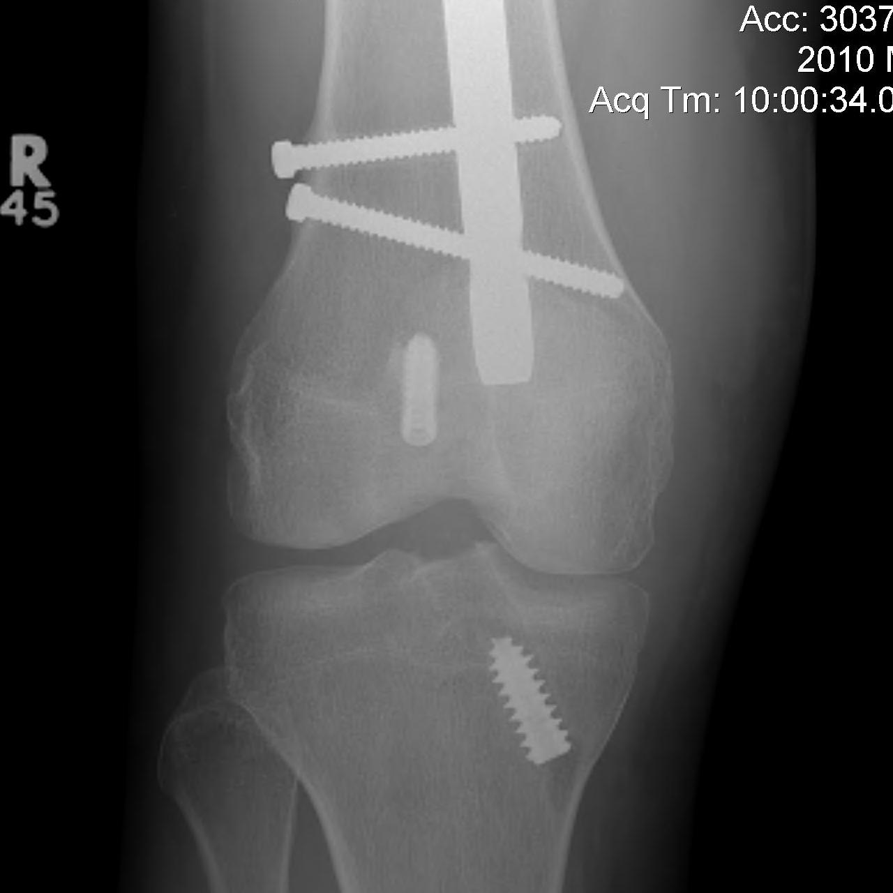 Femoral Fracture + ACL Reconstruction