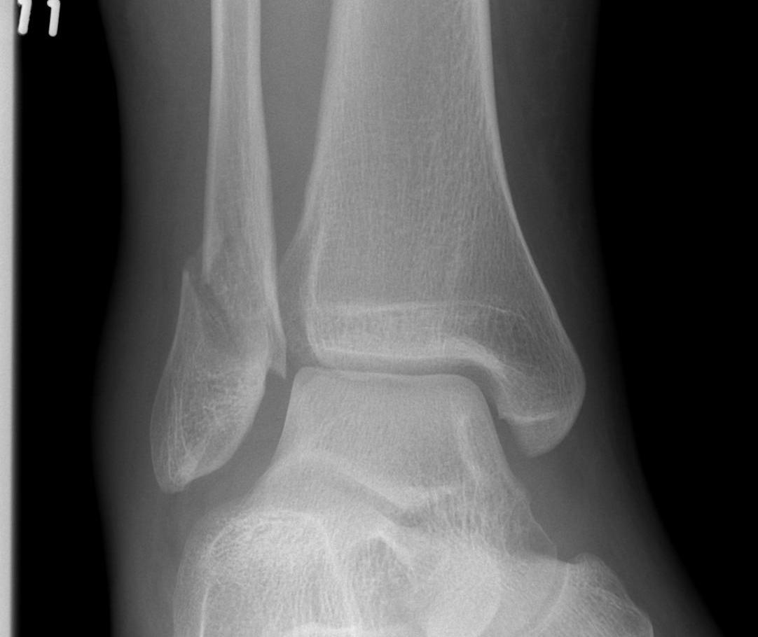 Isolated Fibula Fracture 3 mm displaced