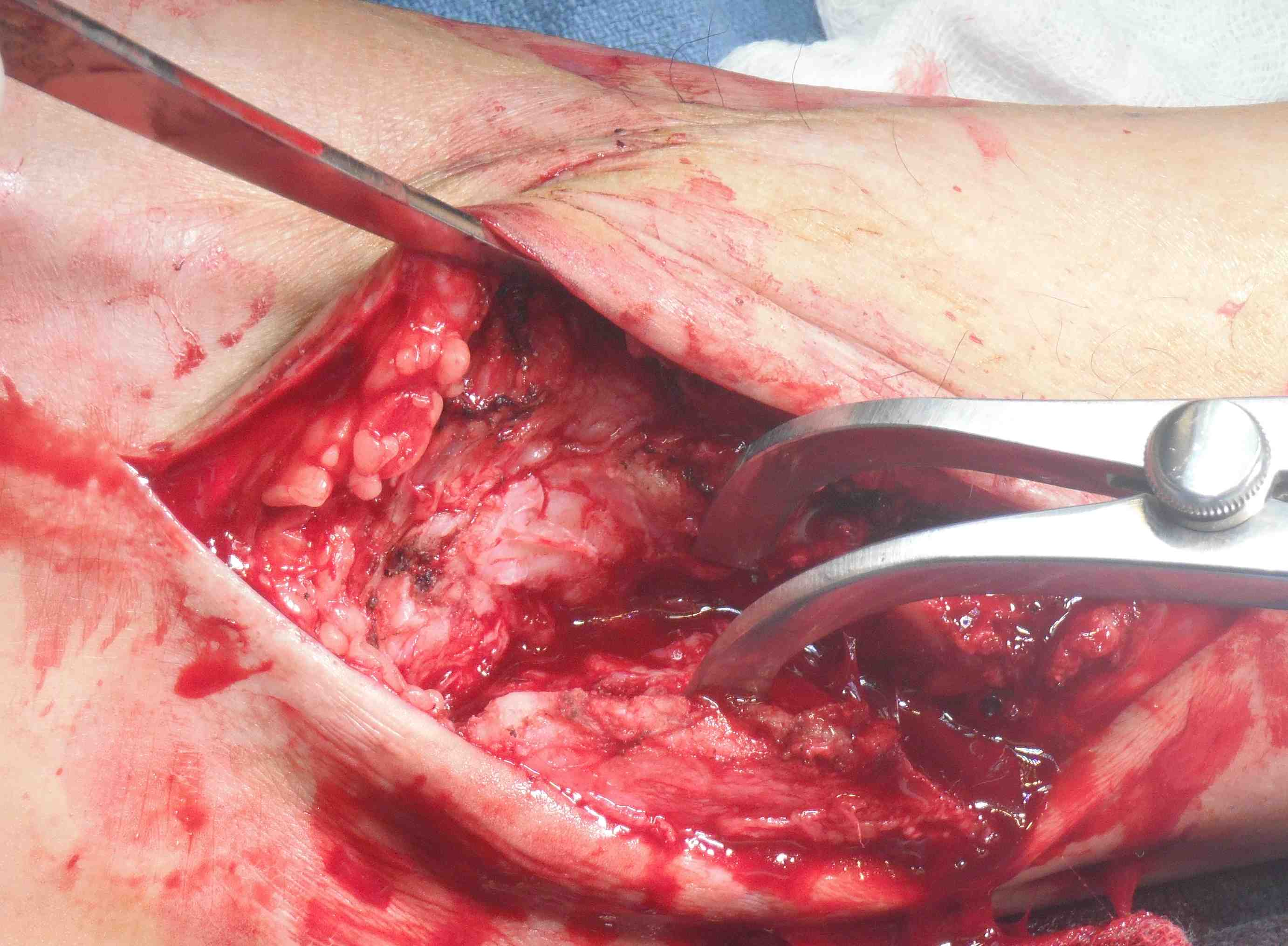 Fibula Osteotomy and Reflected Posteriorly