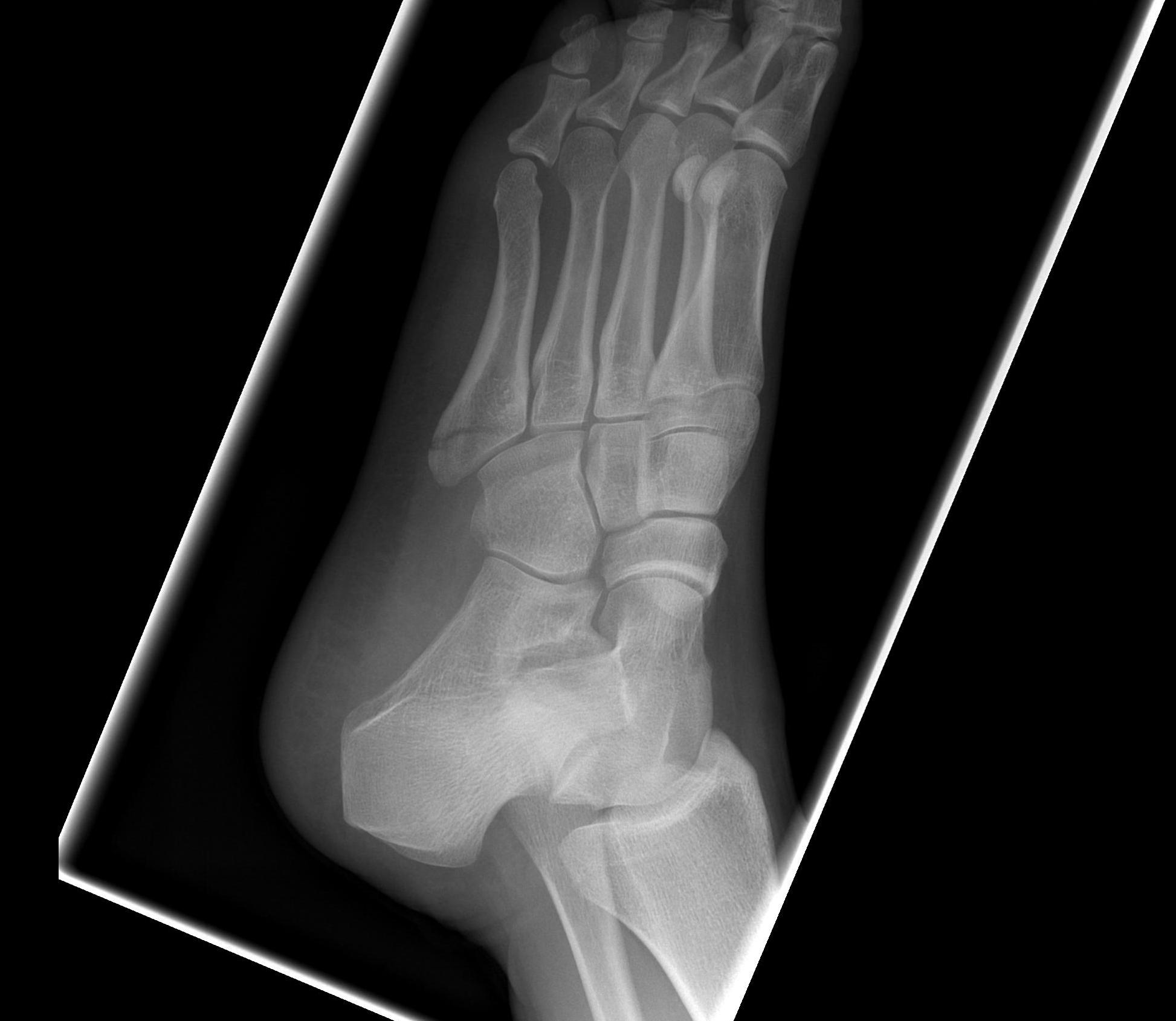 Fifth Metatarsal Undisplaced Avulsion Fracture