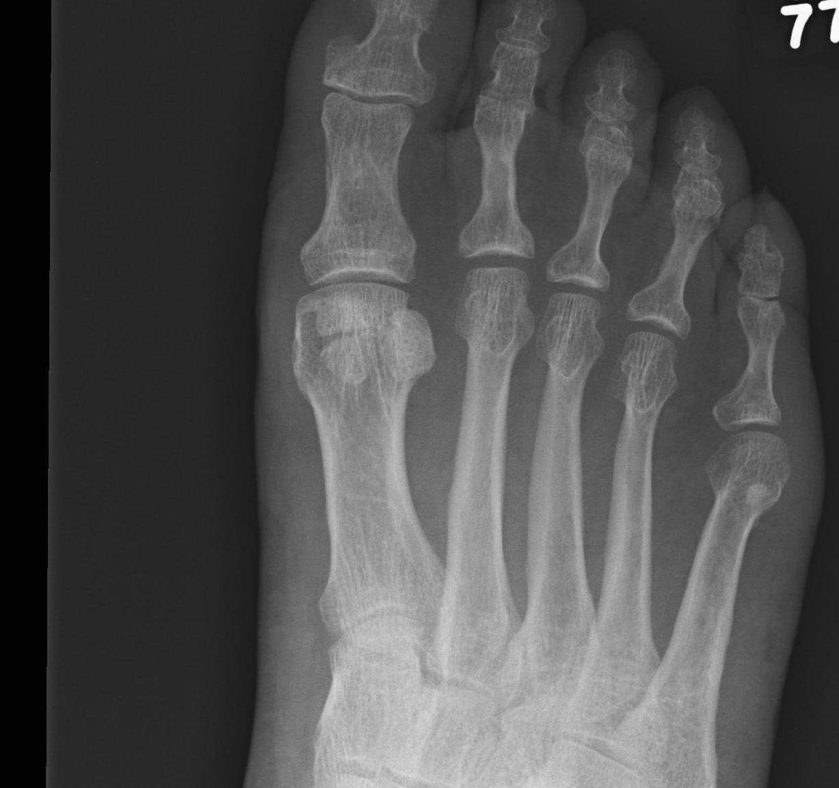 Bipartite Sesamoid