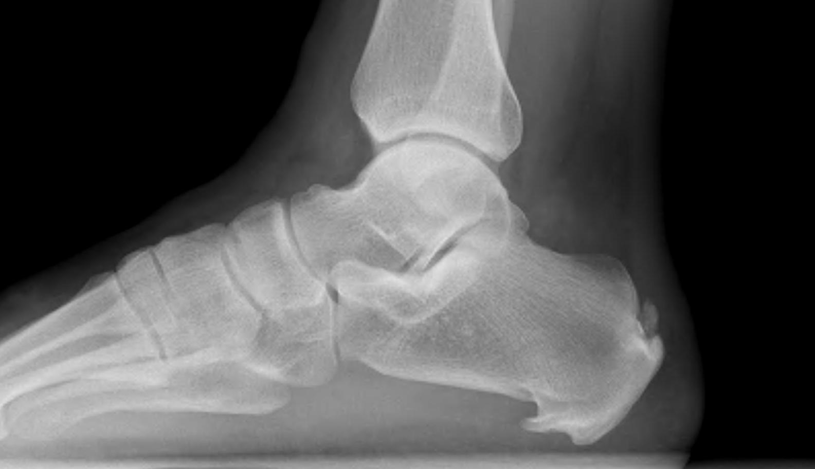 Foot Calcaneal Spur