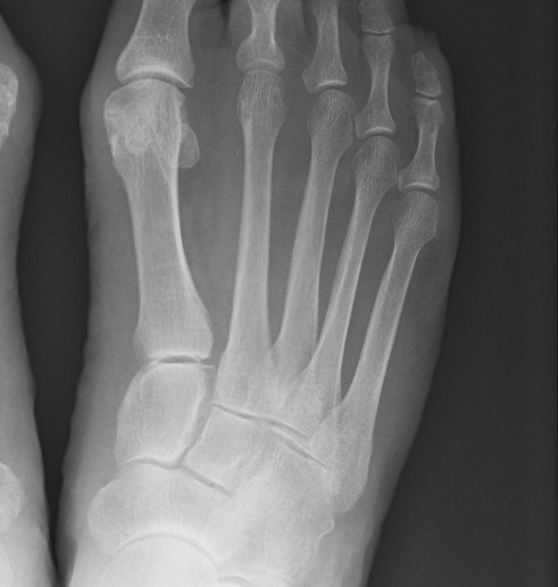 Foot Medial Column Normal