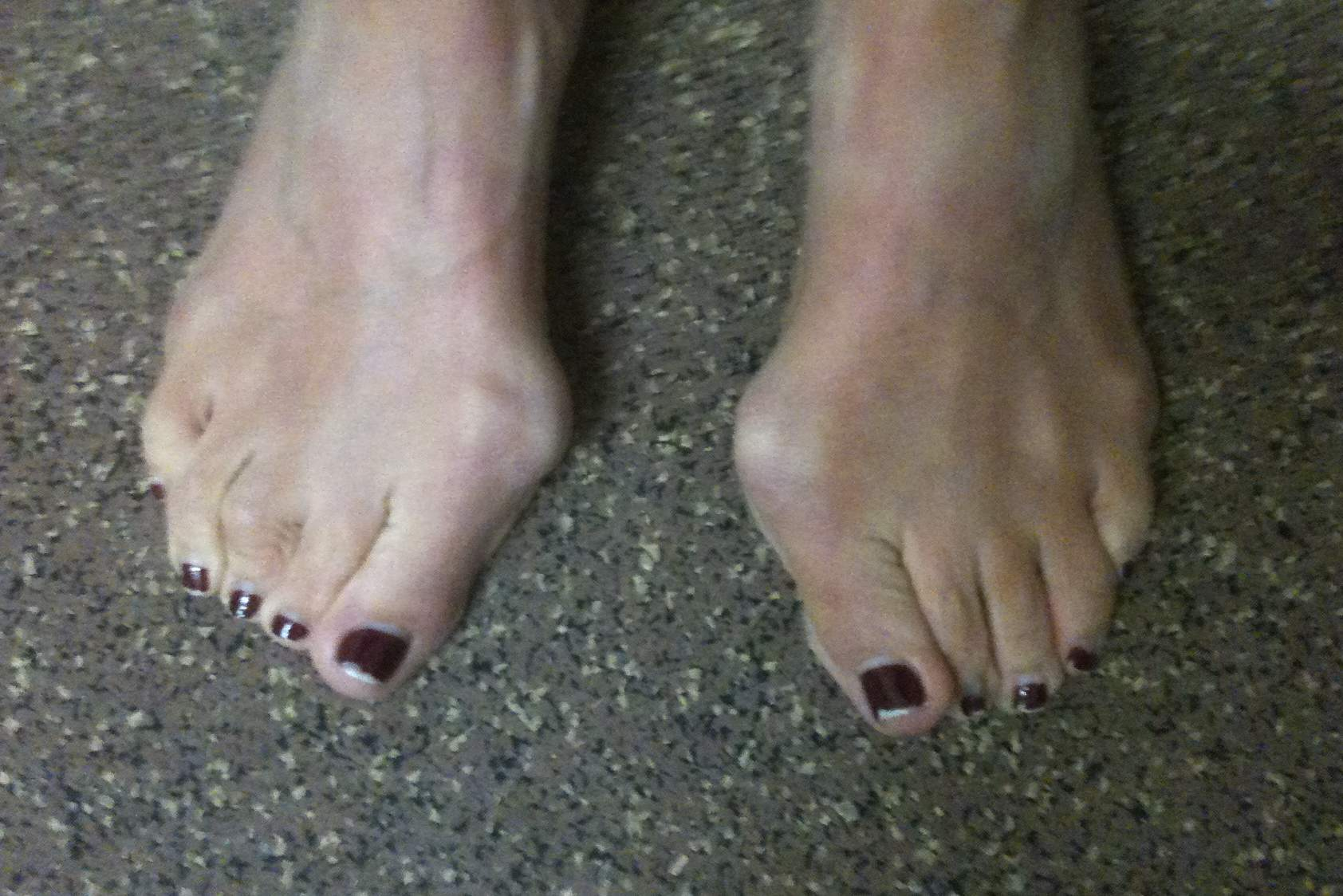 Hallux Valgus Clinical