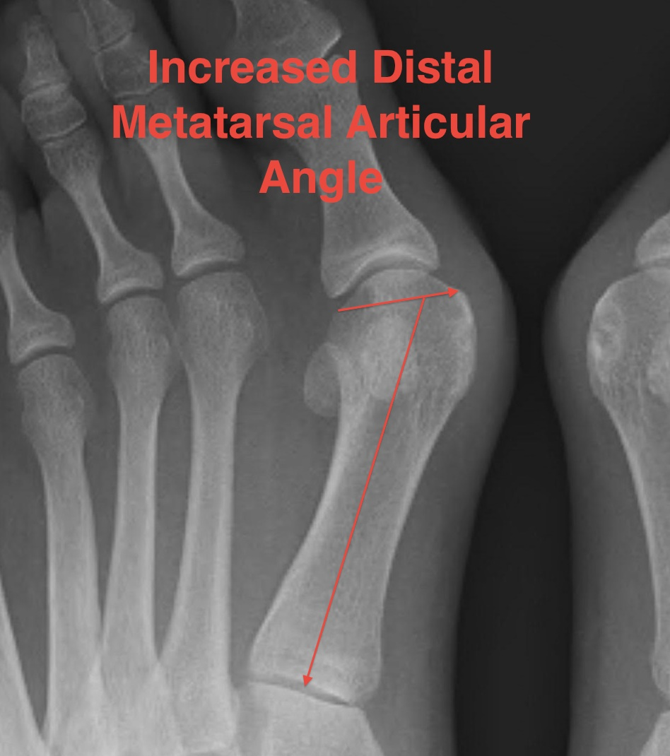 Hallux Valgus Increased DMAA