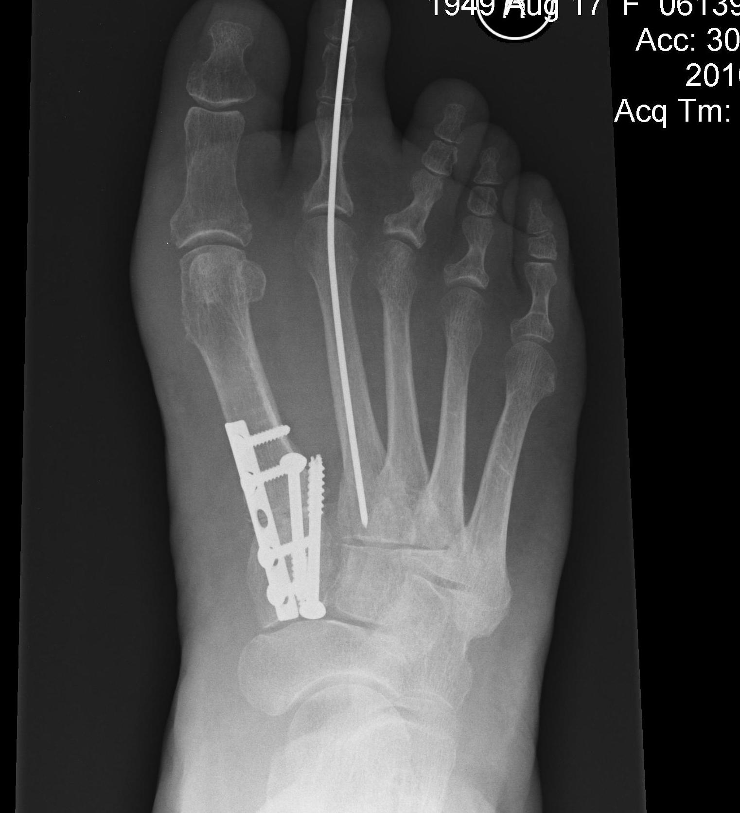 Hallux Valgus Proximal Osteotomy and Lapidus