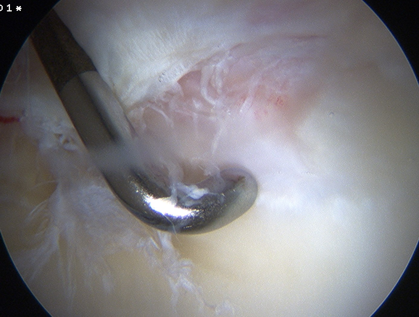 Hip Arthroscopy Degenerative Labral Tear From CAM lesion