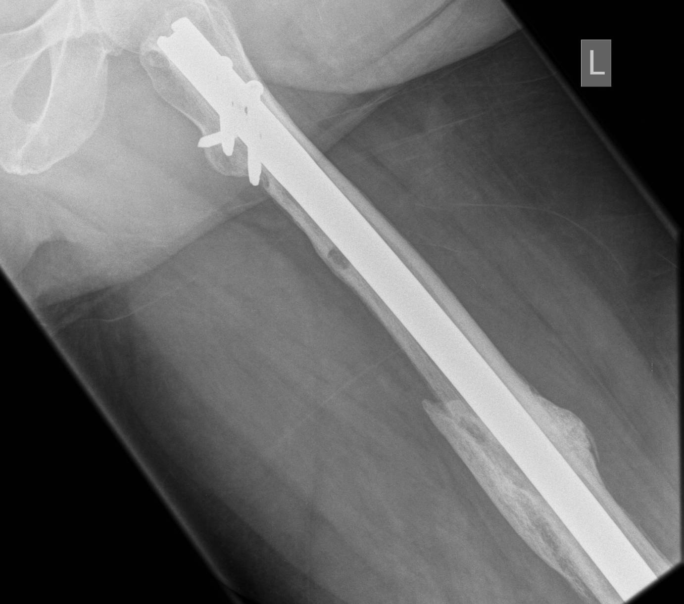 Infected Femoral Nail United Lateral