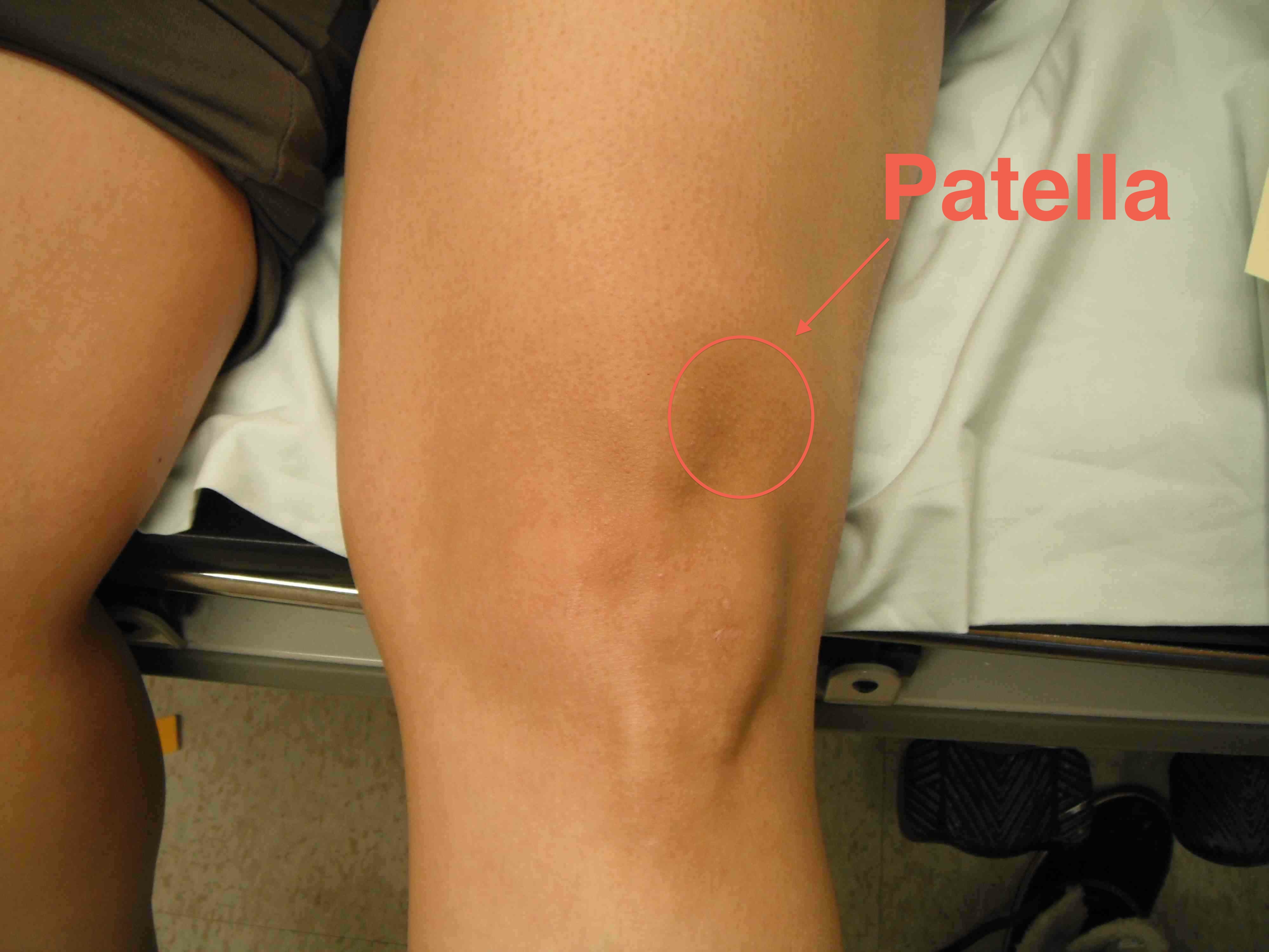 Patella J Tracking Extension