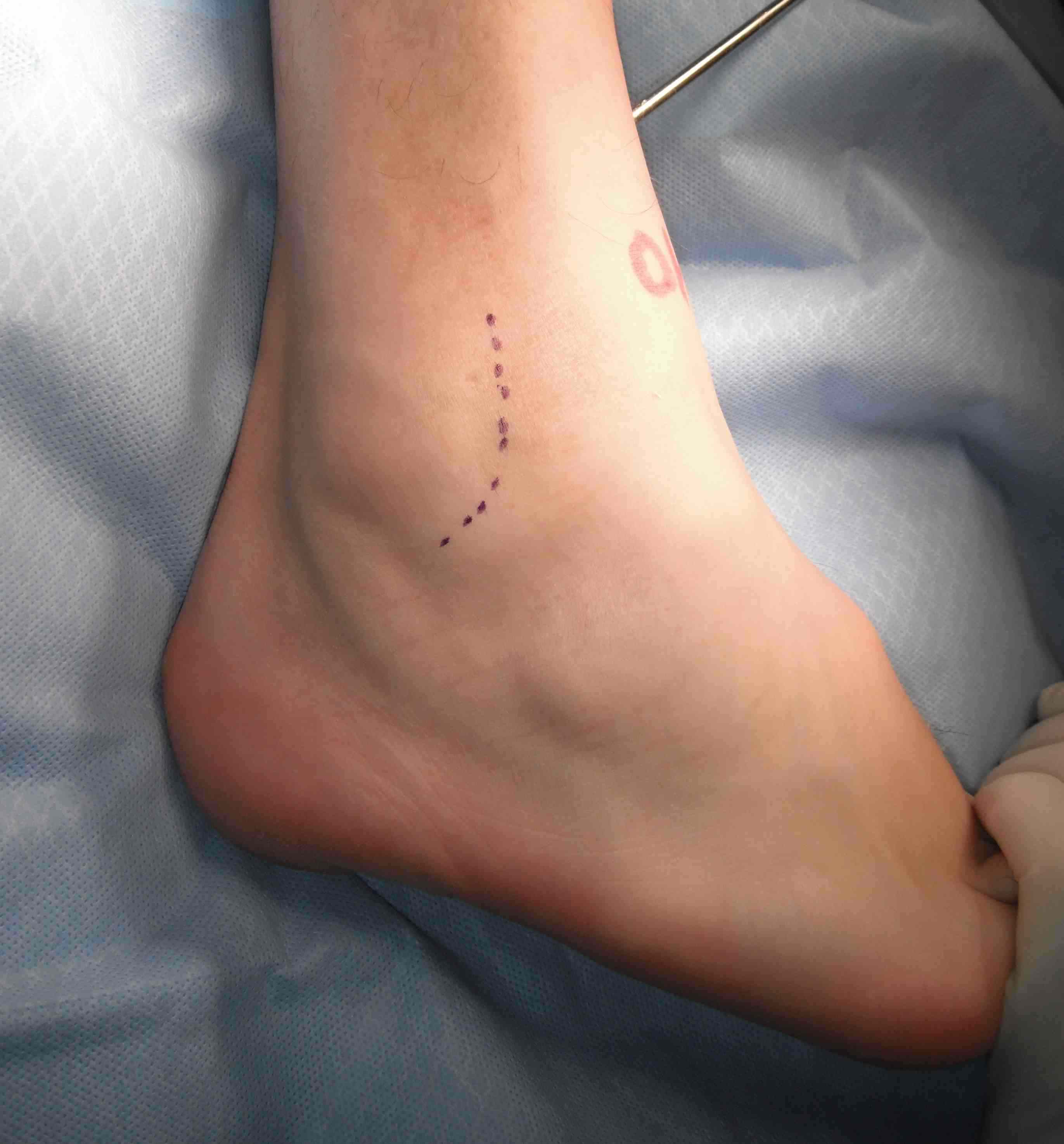 Lateral Ligament Repair Incision