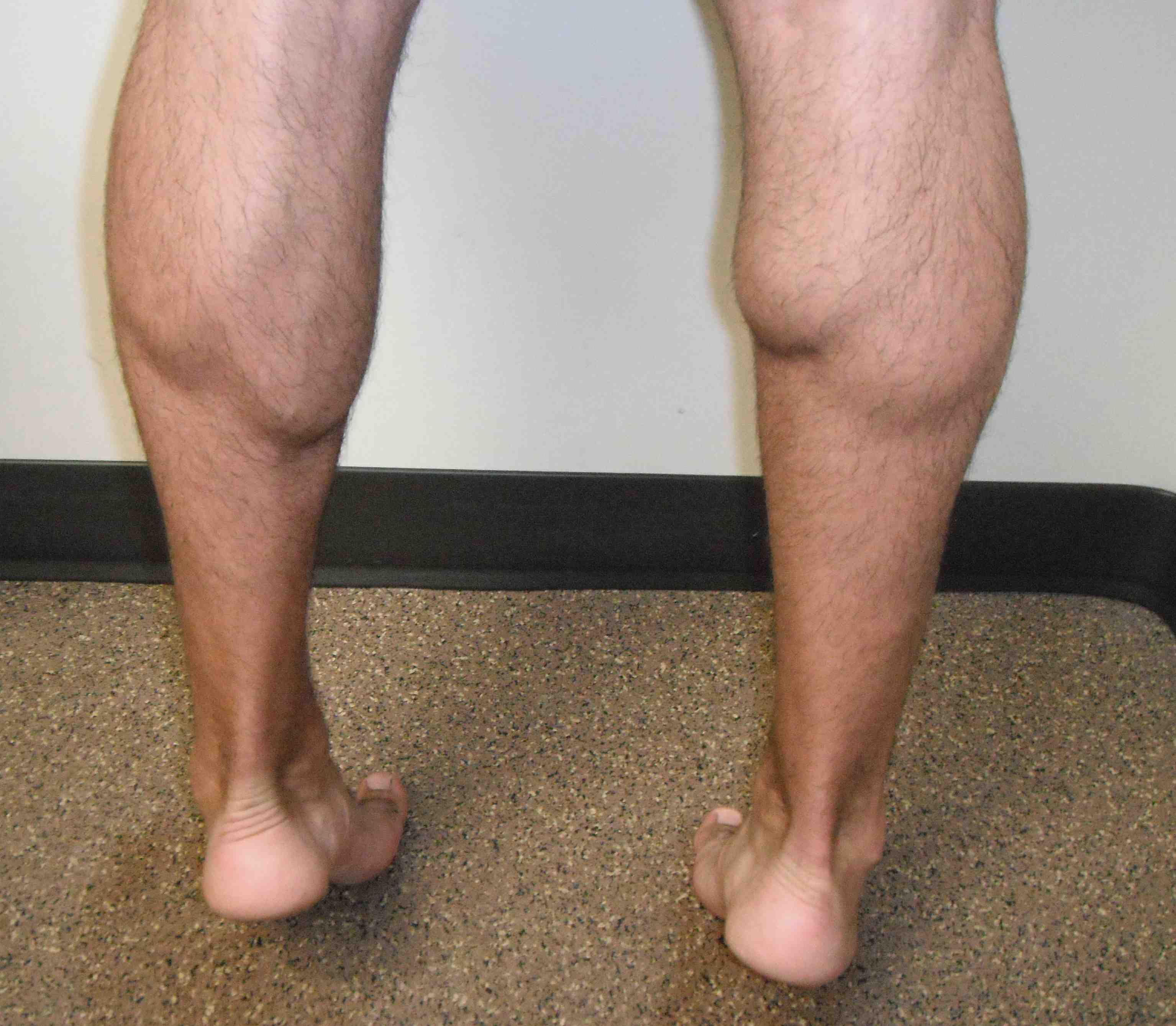 Medial Head Gastrocnemius Rupture