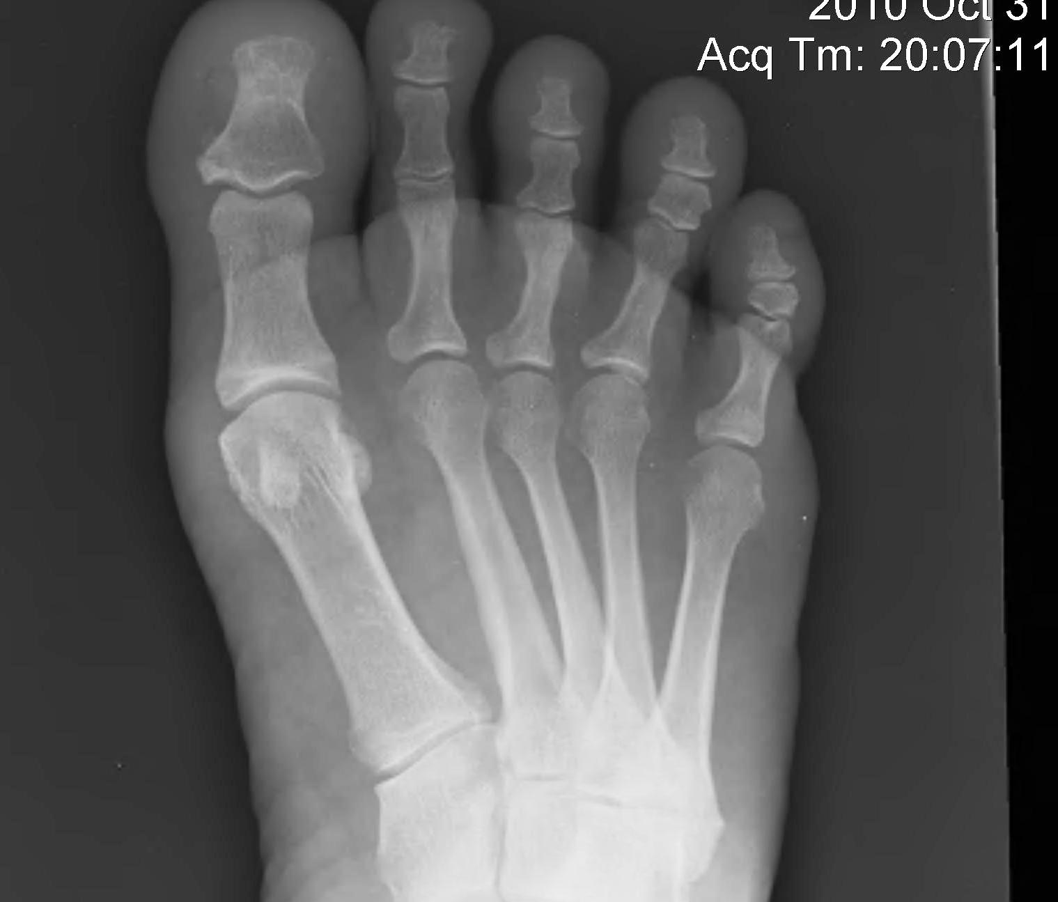 Metatarsalgia Splayed Foot