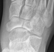 Navicular Stress Fracture Displacing