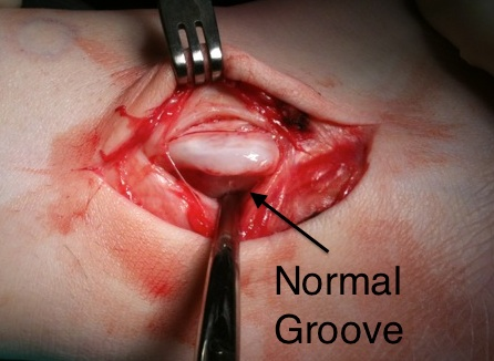 Normal Groove