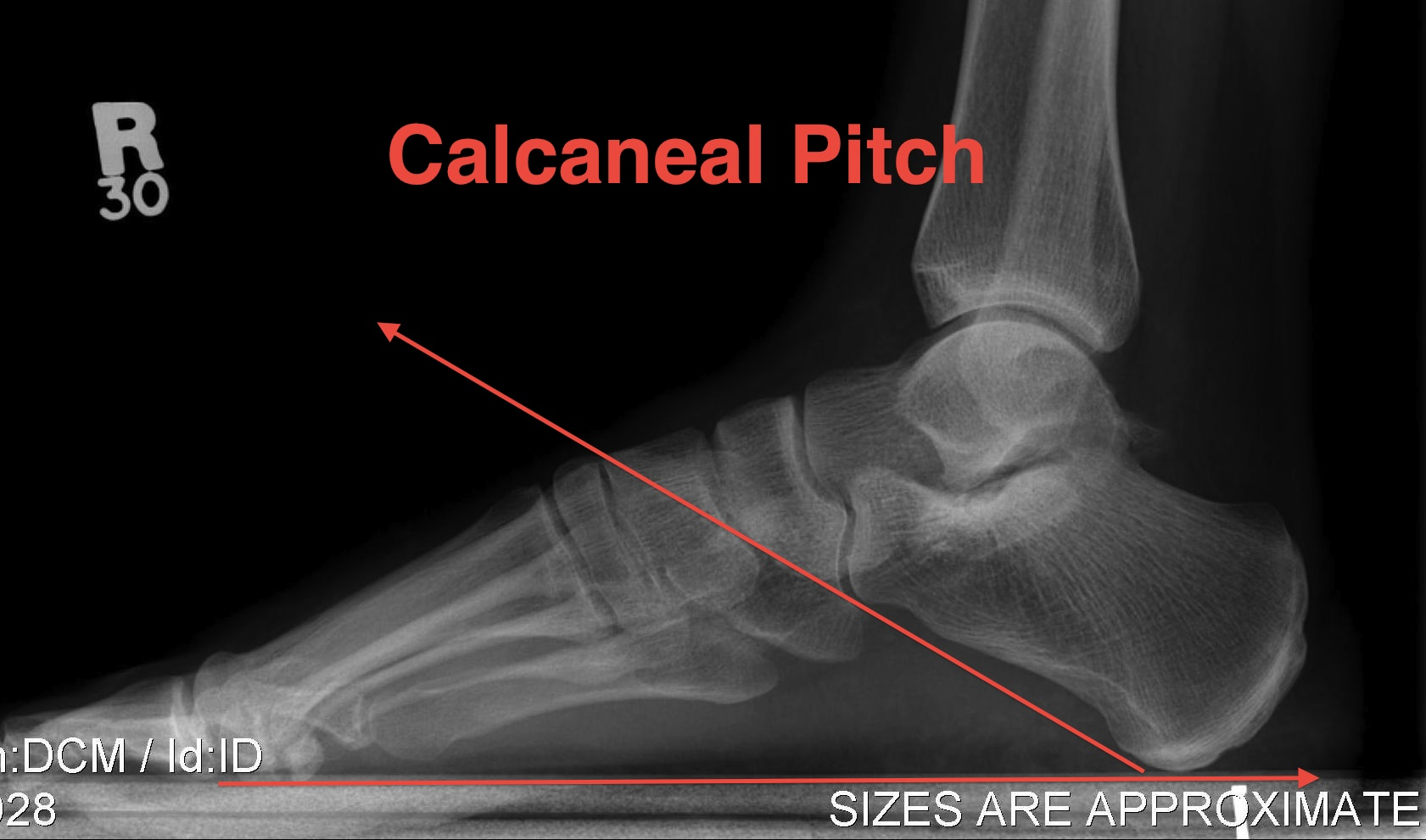 Calcaneal Pitch
