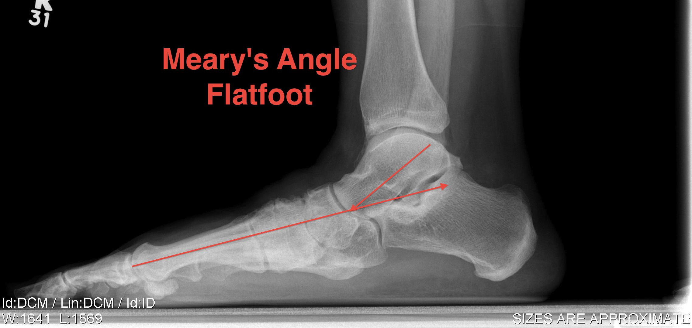 Planovalgus Foot Meary's Angle