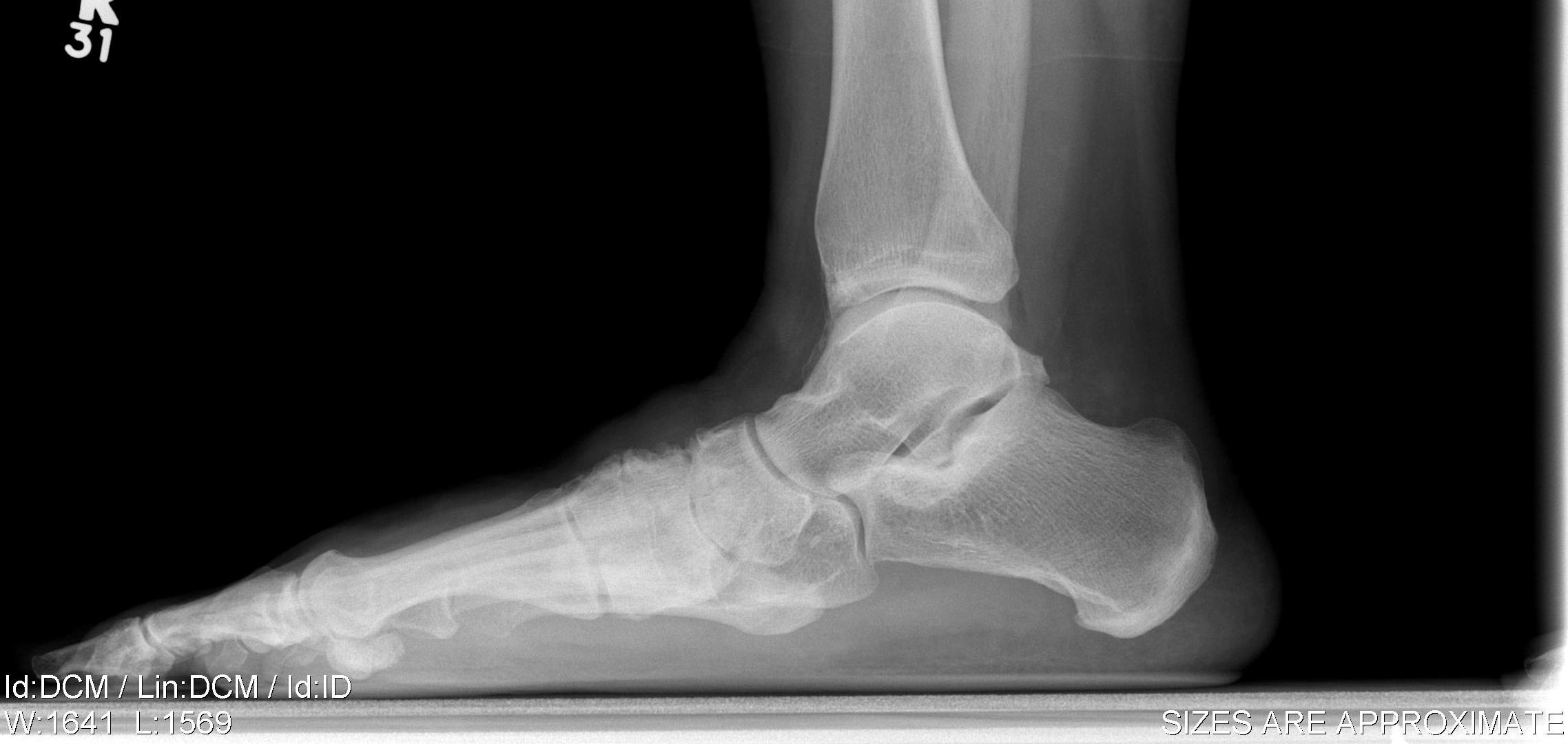 Flexible Flat Foot | The Bone School