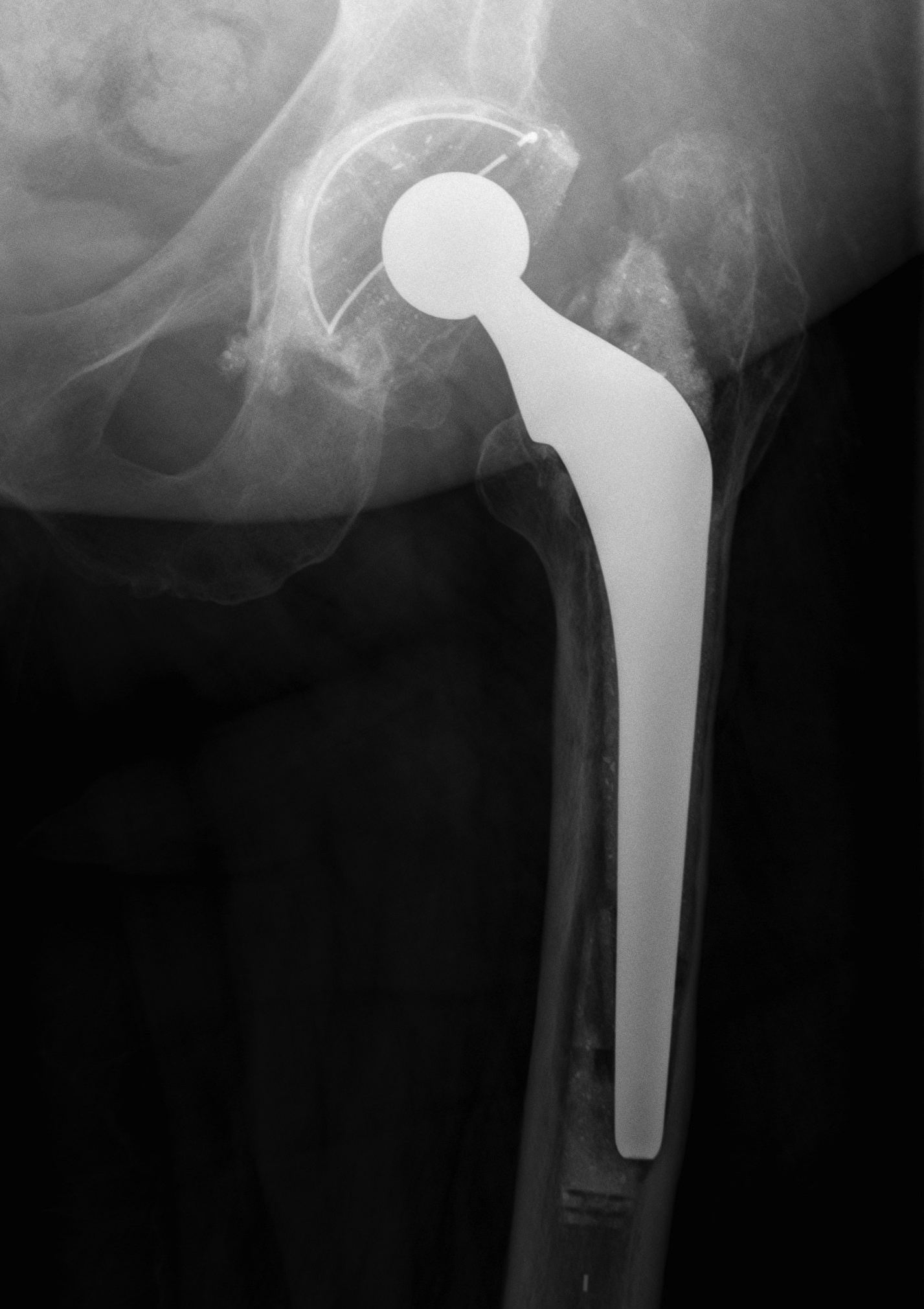 cortical defect femoral