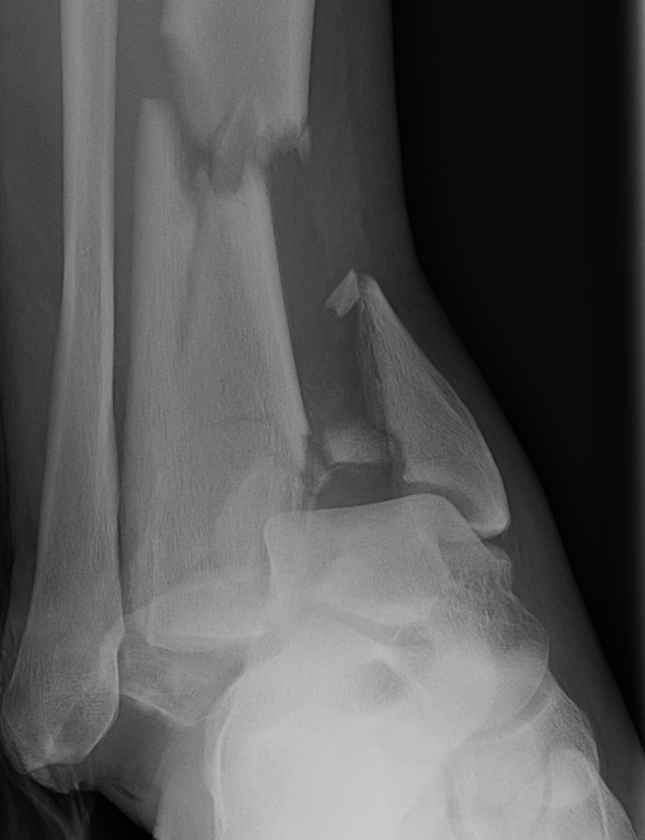 Severe Tibial Plafond
