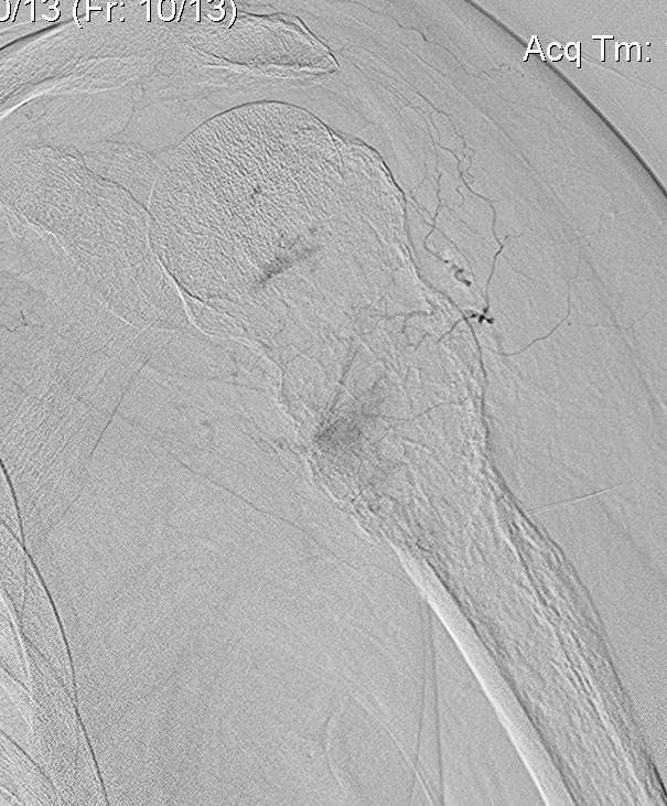Shoulder RCC Embolisation 2