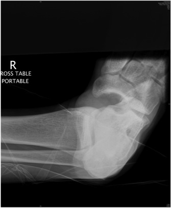 Subtalar Dislocation Xray 1