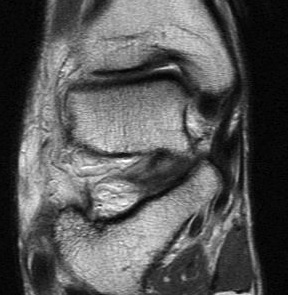 Superficial Deltoid MRI