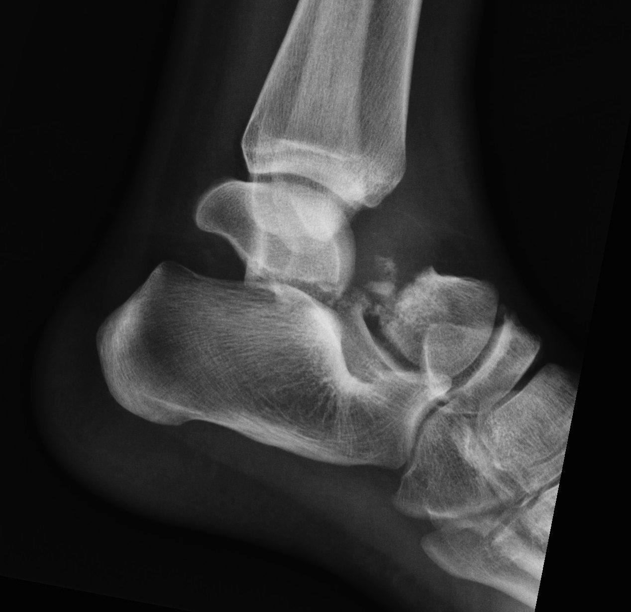 Talus Fracture Type 3