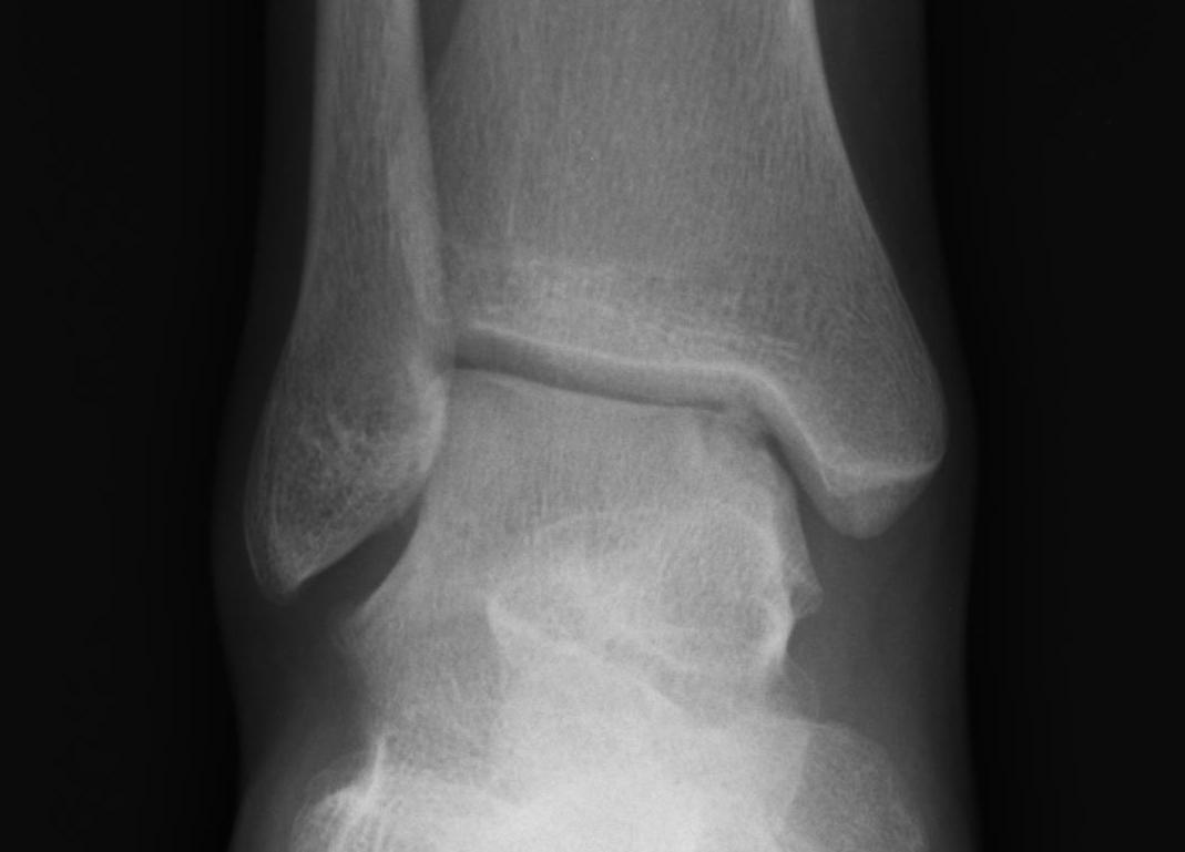 Talus OCD Medial Type 3