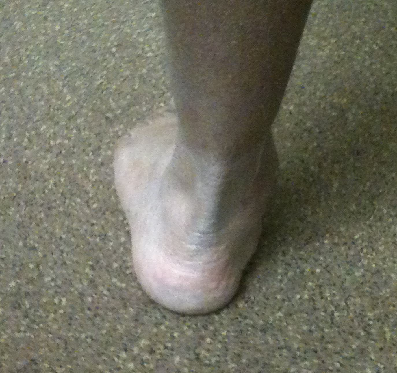 Valgus Hindfoot Clinical