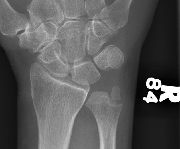 Wrist Ulna Styloid Fracture