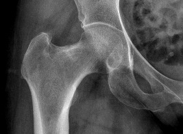 Femoral Neck Stress Fracture