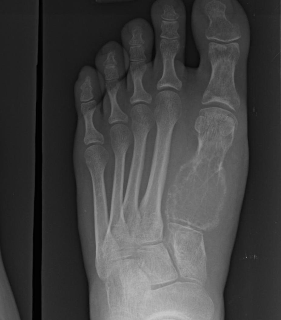 Foot Aneurysmal Bone Cyst