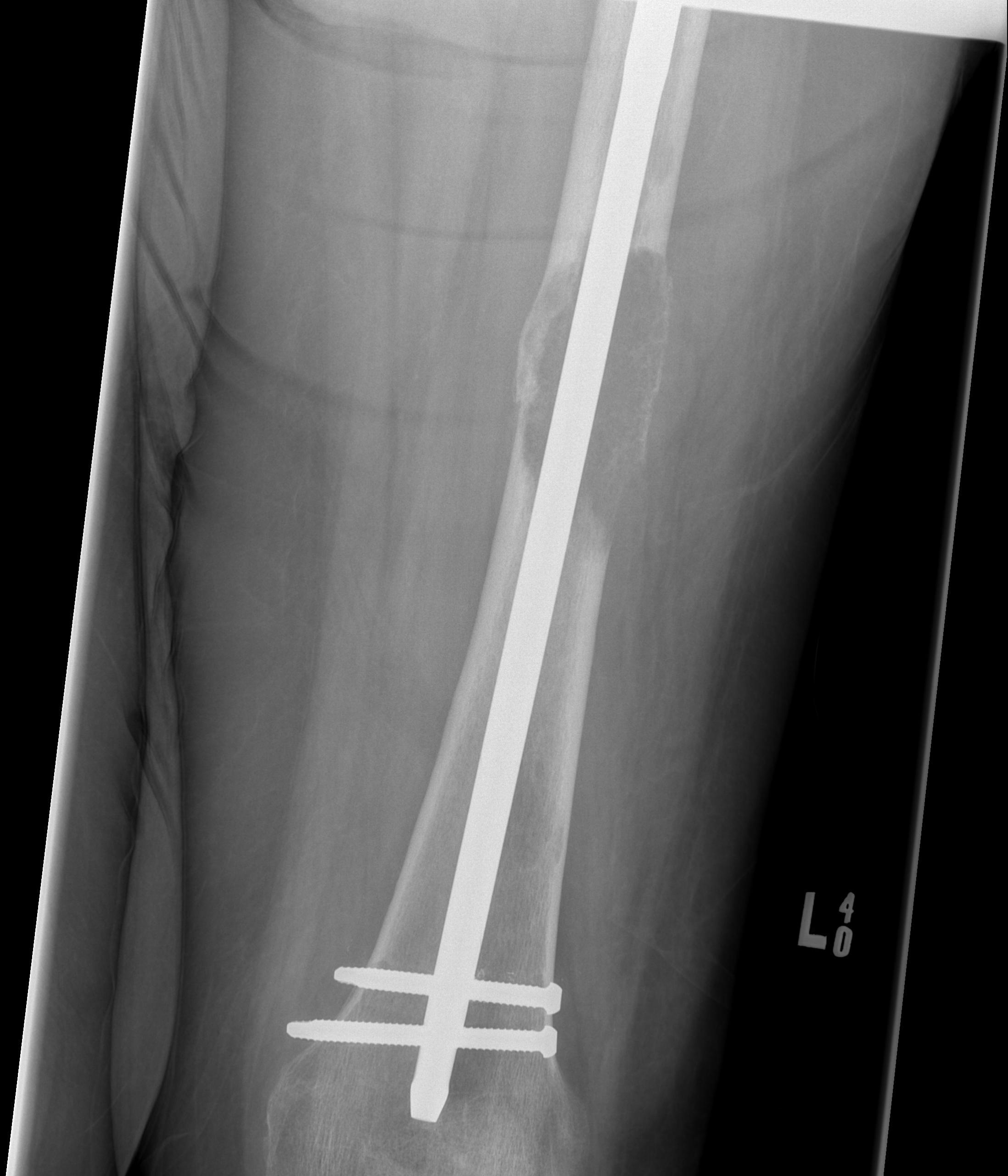 Metastasis Femoral Shaft0001