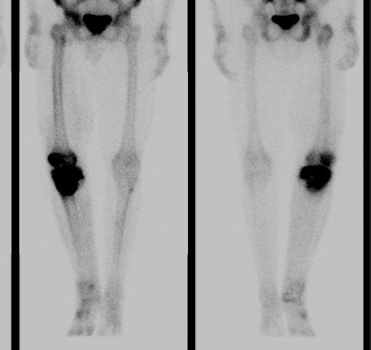 Osteosarcoma Bone Scan
