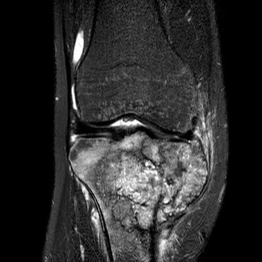 Osteosarcoma Proximal Tibial MRI0001