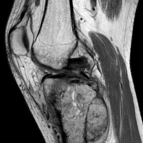 Osteosarcoma Proximal Tibial MRI0002