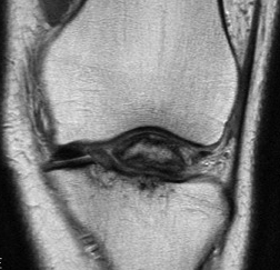 ACL Bony Avulsion Adult