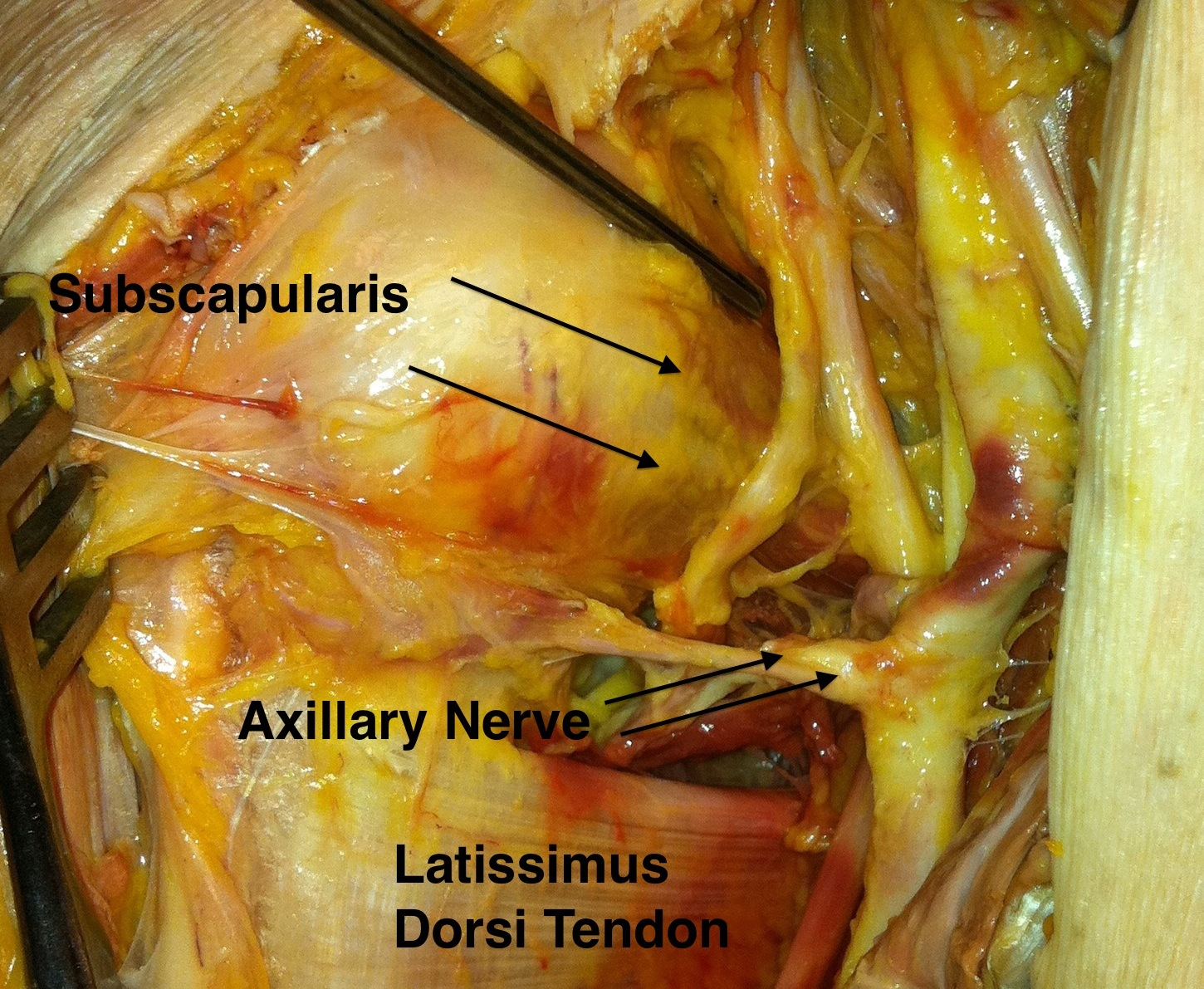 Anterior shoulder approach